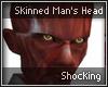 Skinned Man's head