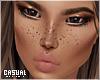 + face freckles