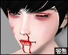 害羞. Bloody MH