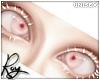 Cross-Eyed-Albino
