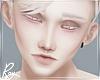 Albert Albino Head