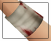 *Alice Arm Bandage* R