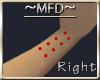 MFD Rt Wrist Piercings M