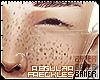 Regular Freckles