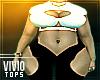 (ViO) Complex BBW