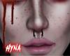 H 💊 Freckles + Septum