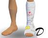 Leg Cast (Right)