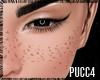 P. Freckles