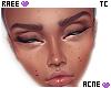 ® Tc. Acne Mid