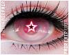 F. Seeing Stars Albino
