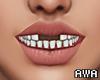 擾 Teeth. F