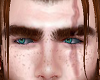 Scar brows