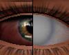 Asteri Dead Eyes