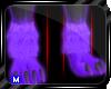 M~ ChipU|Legs M.