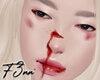 [F] Chen Hurt Mesh Head