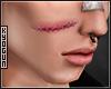 京 Facial Scar 2.0
