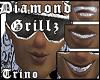 DIAMOND Grillz Johnny H