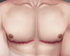 .FTM. top surgery I