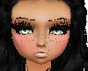 KID-Ava freckles