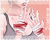 Soiled Bandages