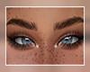 Crossed Eyes 2
