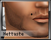 [H] Male birthmark