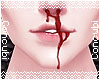 Bleed   Evan