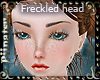*P* Freckle Face II