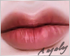 A | Welles lips