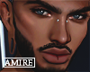 Vonmatic | Custom Skin