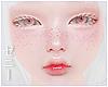 頭 Albino *freckles* MH