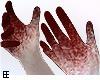 !EEe Blood Hands