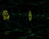 dark green club