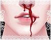 Bleed |Matt