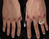 Bruised knuckles hands