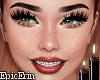 Braces Smile Headv2