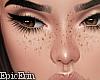 [E]*Natural Freckles*