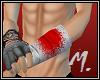 Bandage au bras M.