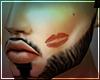 D. KISS