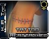 [MJA] Tattoo reattached