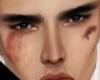 Male injured Skin