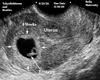 Custom HH Ultrasound Pic