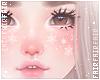 F. ADD+ Snow Freckles