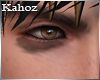 *k*Eye bags