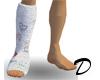 Leg Cast (Left)