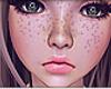 KID Freckles