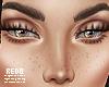 Freckles (light-med)