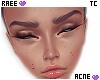 ® Tc. Acne Light