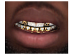 Open Face Diamond Grillz