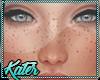 K- Freckles